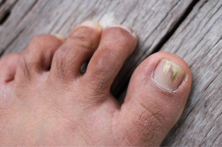 Advantages and disadvantages of Different Toenail Fungus Treatments